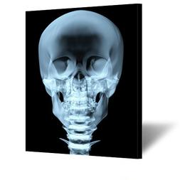 Kreative Arts - Large Size Canvas Wall Art Skeleton X-Ray Sk